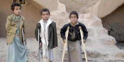 400 ألف طفل يموتون جوعا.. المجتمع الدولي يفشل إنسانيًا باليمن