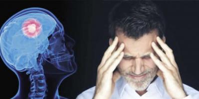 دراسة: هؤلاء الأشخاص معرّضون للإصابة بالسكتة الدماغية